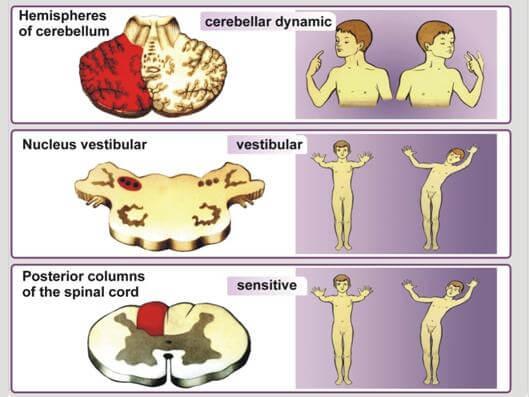 Атаксия Фридрейха – симптомы и лечение, фото и видео.