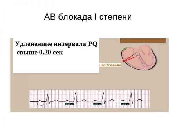 Атриовентрикулярная блокада – симптомы и лечение, фото и видео.