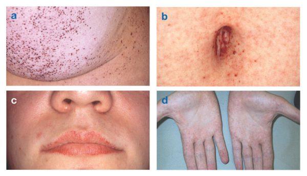 Болезнь Фабри – симптомы и лечение, фото и видео.
