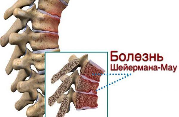 Болезнь Шейермана-Мау – симптомы и лечение, фото и видео.
