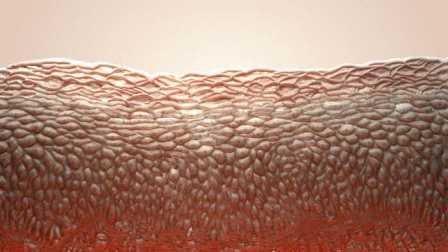 Ребенок, страдавший редким заболеванием, получил генномодифицированную здоровую кожу
