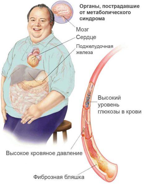Метаболический синдром – симптомы и лечение, фото и видео.