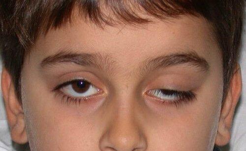 Опущение верхнего века Птоз у ребенка – симптомы и лечение, фото и видео.