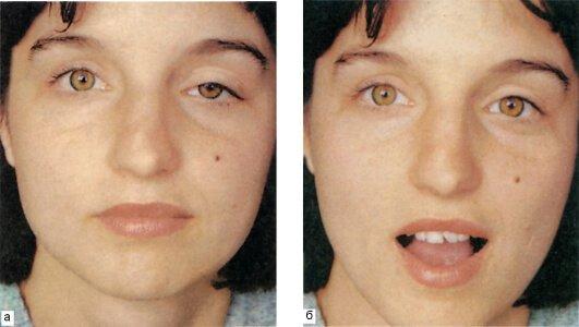 Опущение верхнего века Птоз – симптомы и лечение, фото и видео.