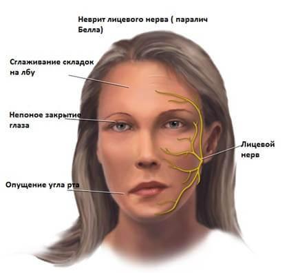 Паралич Белла – симптомы и лечение, фото и видео