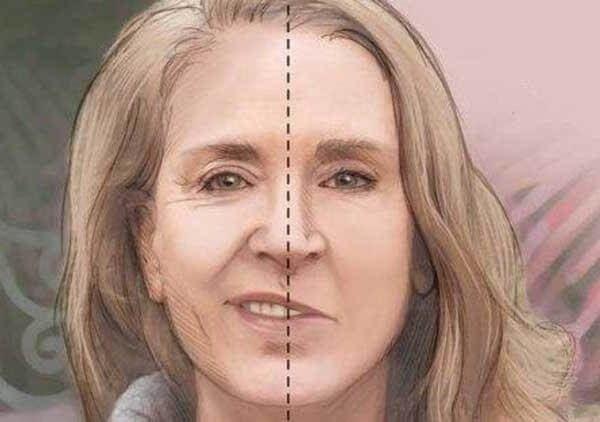 Паралич Белла – симптомы и лечение, фото и видео.