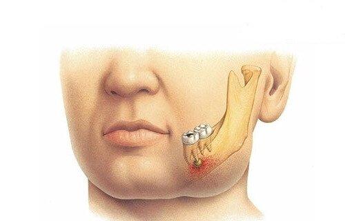 Пародонтальный абсцесс – симптомы и лечение, фото и видео.