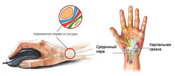 Синдром запястного канала – симптомы и лечение, фото и видео.