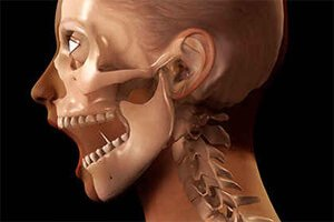 Вывих нижней челюсти – симптомы и лечение, фото и видео.