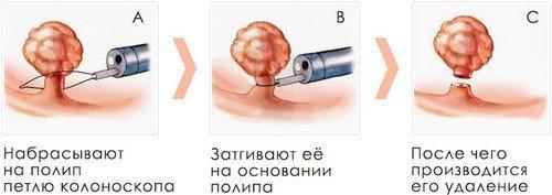 Полип шейки матки – симптомы и лечение, фото и видео.
