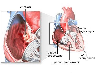 Рабдомиома сердца у детей – симптомы и лечение, фото и видео