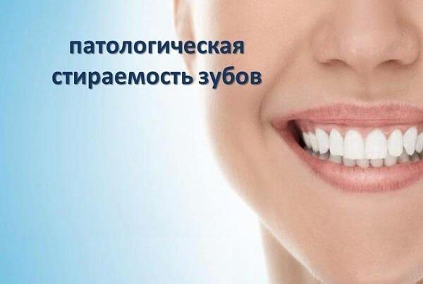 Патологическая стираемость зубов – симптомы и лечение, фото и видео
