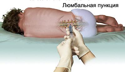 Летаргический энцефалит – симптомы и лечение, фото и видео