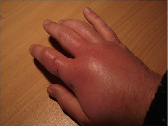 Пастереллез – симптомы и лечение, фото и видео.