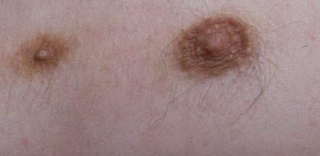 Полителия – симптомы и лечение, фото и видео