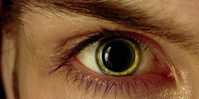 Мидриаз – симптомы и лечение расширения зрачка