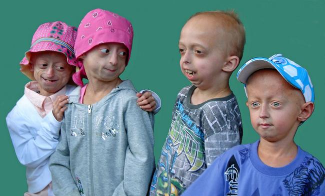 Прогерия – симптомы и лечение, фото и видео