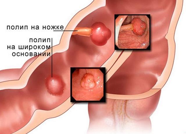 Полип толстой кишки – симптомы и лечение, фото и видео