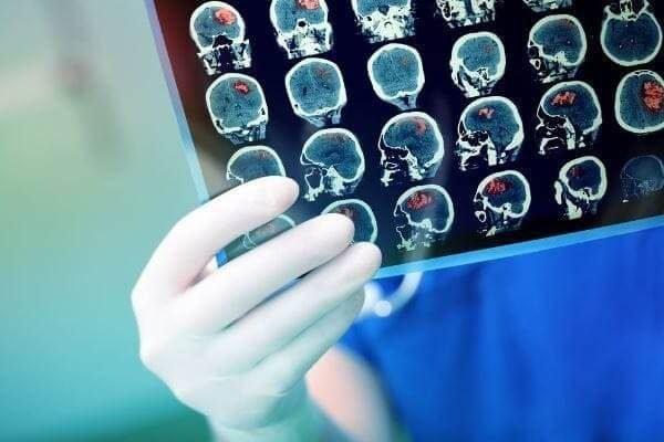 Лечение рака мозга - дикий вирус.
