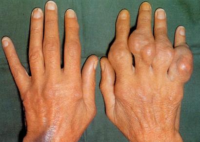 Синовиома – симптомы и лечение, фото и видео
