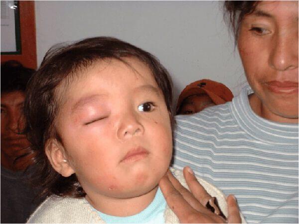 Болезнь Шагаса – симптомы и лечение, фото и видео.