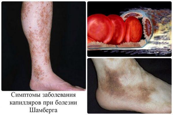Болезнь Шамберга — симптомы и лечение, фото и видео.