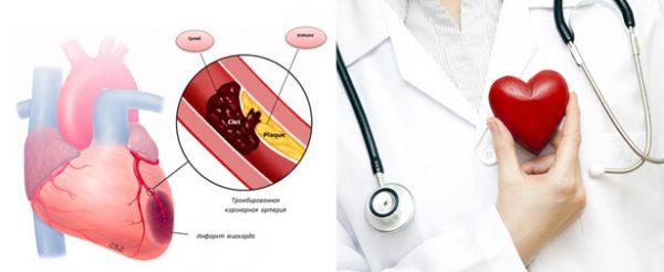 Декстрокардия – симптомы и лечение, фото и видео.