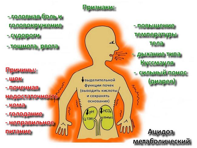 Метаболический ацидоз – симптомы и лечение