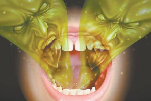 Галитоз – симптомы и лечение запаха изо рта.