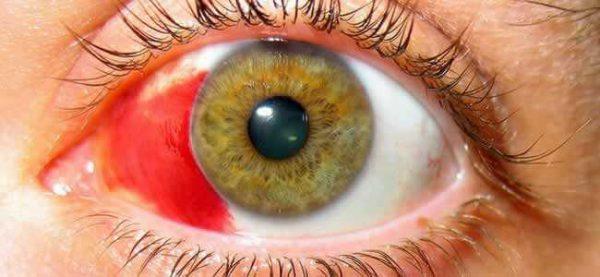 Гифема – симптомы и лечение, фото и видео.