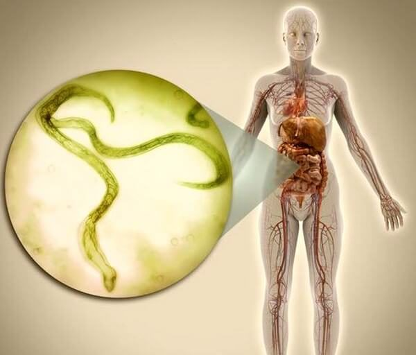 Гименолепидоз – симптомы и лечение, фото и видео.