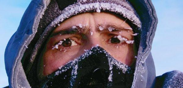 Гипотермия и обморожение.