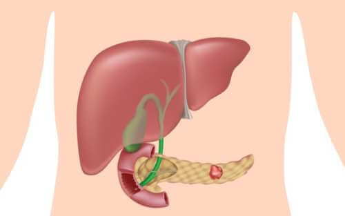 Инсулинома – симптомы и лечение, фото и видео.