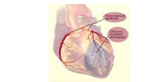 Кардиогенный шок – симптомы и лечение, фото и видео.