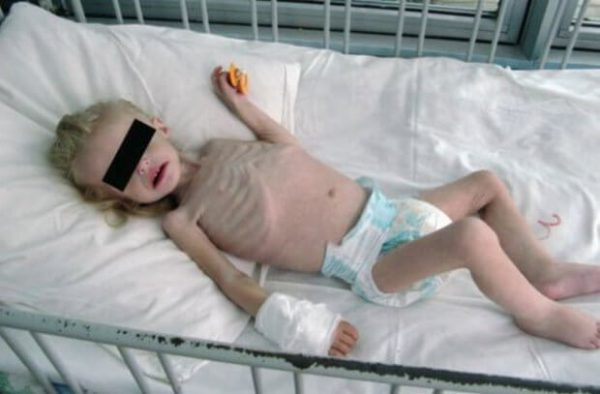 Квашиоркор – симптомы и лечение, фото и видео.