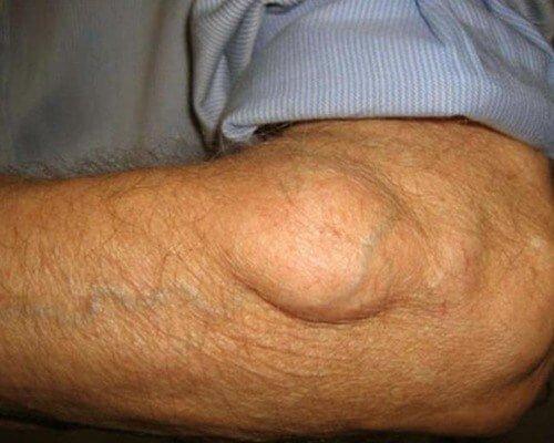 Липосаркома – симптомы и лечение, фото и видео.