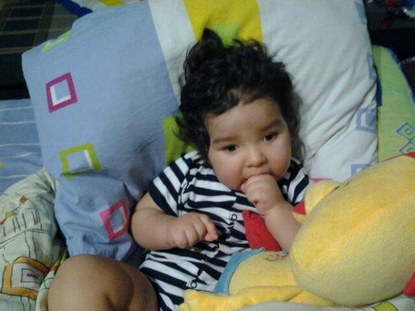 Лиссэнцефалия – симптомы и лечение, фото и видео.