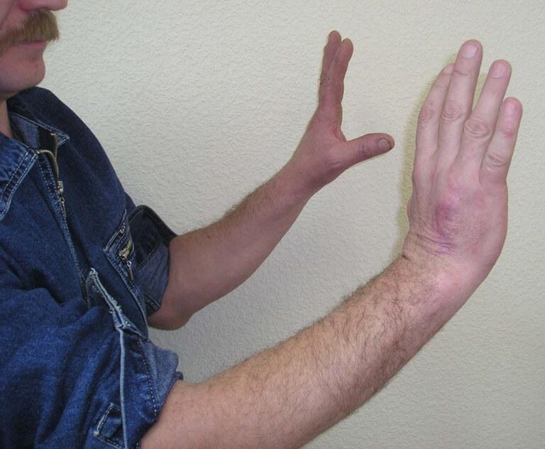 Остеобластокластома – симптомы и лечение, фото и видео