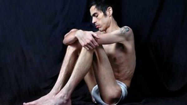 Пангипопитуитаризм – симптомы и лечение, фото.
