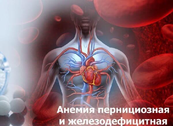 Пернициозная анемия – симптомы и лечение, фото и видео.