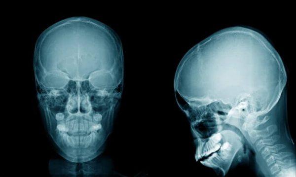 Платибазия – симптомы и лечение, фото и видео.