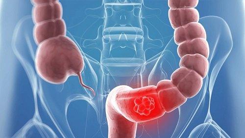 Трансверзоптоз – симптомы и лечение, фото и видео.