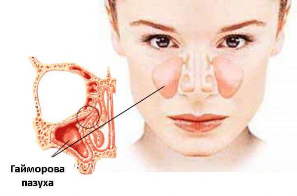 Мицетома – симптомы и лечение, фото и видео