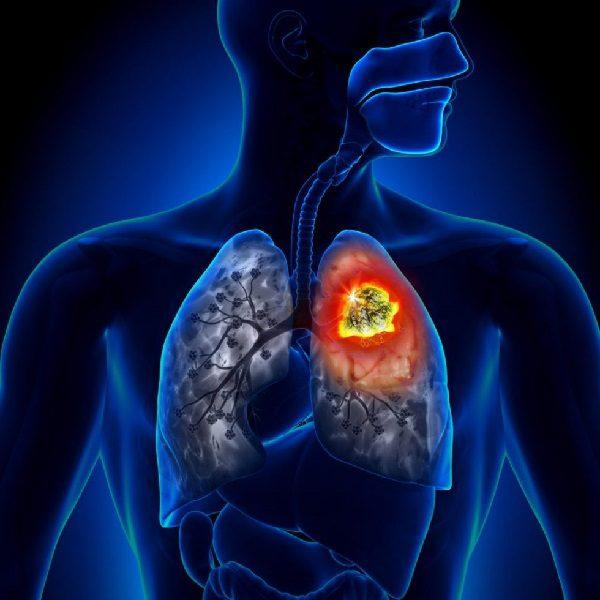 Бронхоаденит – симптомы и лечение, фото и видео.