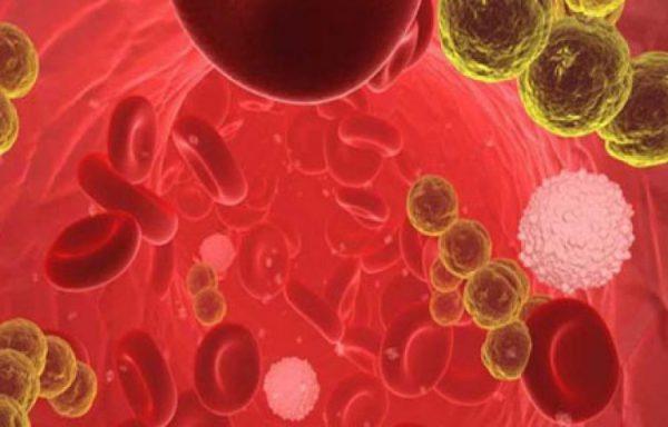 Септикопиемия – симптомы и лечение, фото и видео.