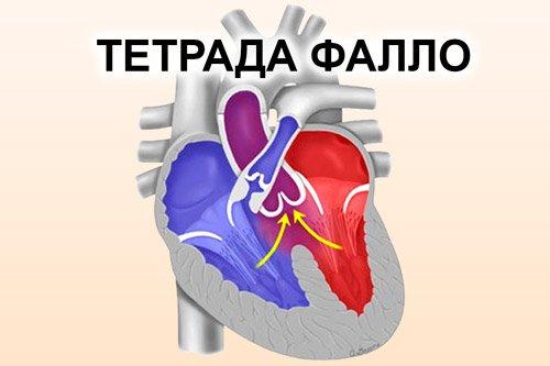 Тетрада Фалло – симптомы и лечение, фото и видео.