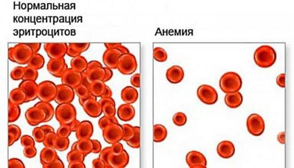 Анемия Минковского-Шоффара – симптомы и лечение, фото и видео.