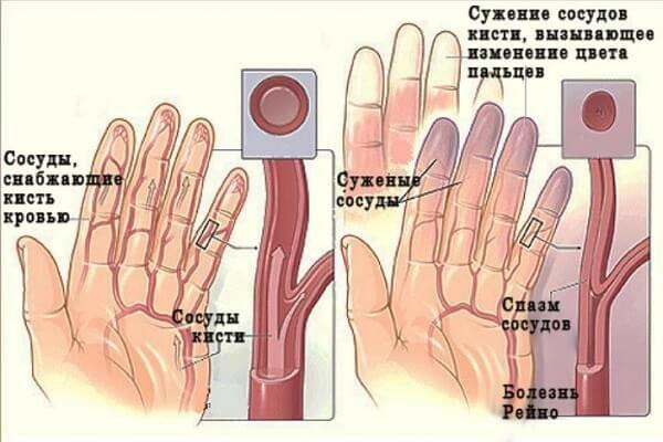 Ангиотрофоневроз – симптомы и лечение, фото и видео.