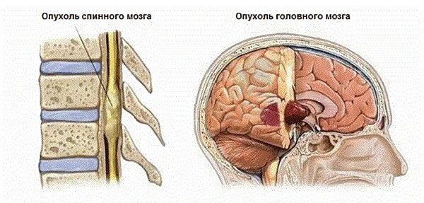 Эпендимома – симптомы и лечение, фото и видео.