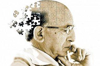 Никотиновая кислота для лечения болезни Альцгеймера